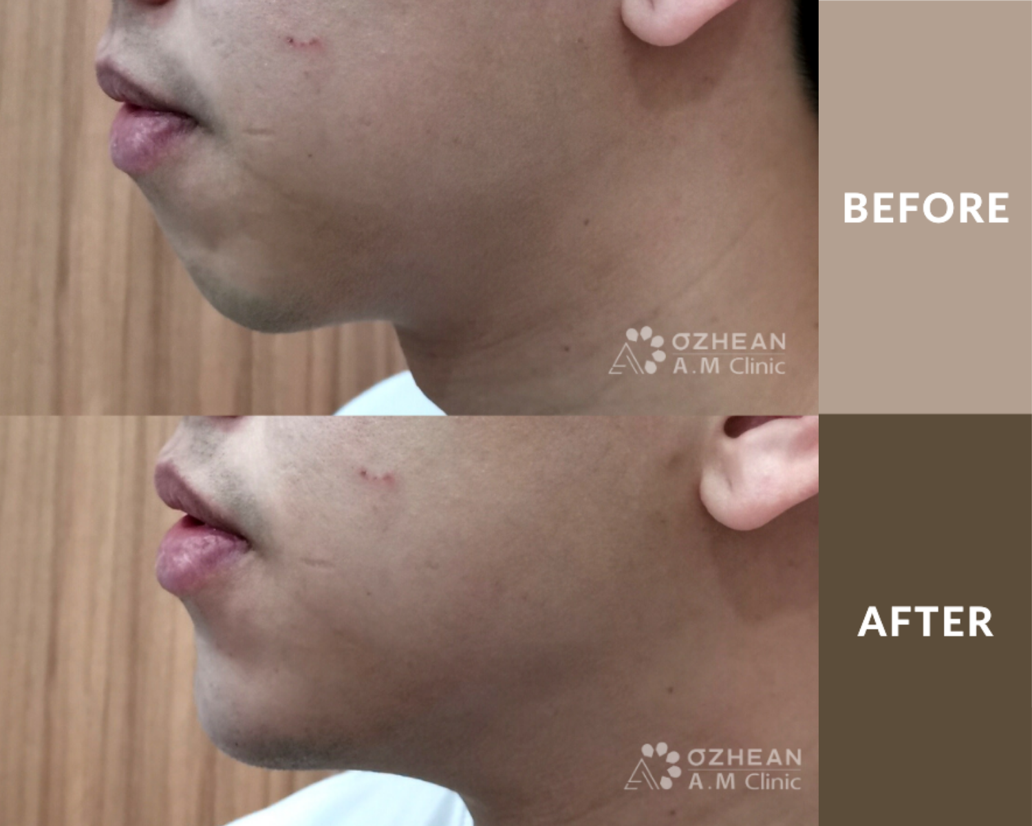 Ozhean AM - Chin Filler Before & After