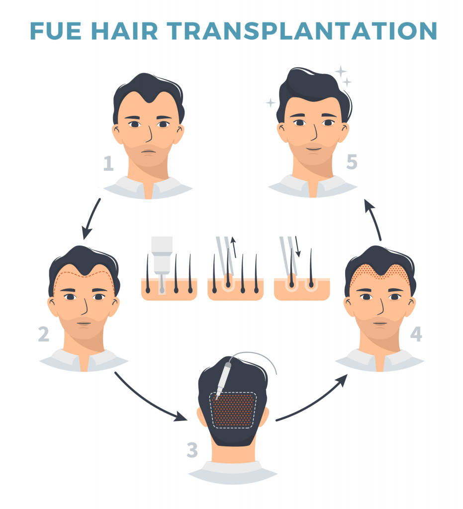 Ozhean AM Clinic - What is FUE?